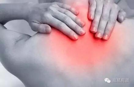 肩颈疼,刮5条线