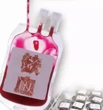 ab型占人口比例_各种血型人口比例,看看你的血值多少钱